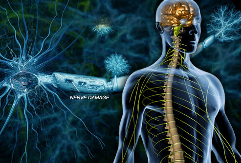 Multiple Sclerosis Treatment at Advance Upper Cervical chiropractic Walnut Creek CA