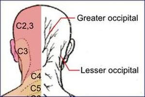 Occipital Neuralgia Helped at Advance Upper Cervical chiropractic Walnut Creek CA